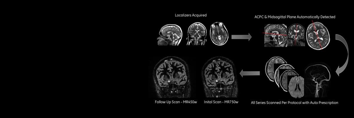geração de imagens neurológicas t2 propeller sagittal